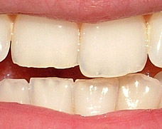 Incisors with moderate notched wear