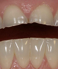 Incisors with severe wear