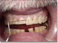 Partial restoration of upper anterior teeth using composite material