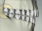 bruxing effect on molars