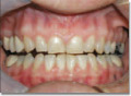 Patient with full dental bridge -occlusally incorrect causing neuromuscular and tooth pain