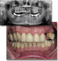 Multiple replacement and failures of bridge with loss of teeth -unrecognized severe occlusal disease from previous dentist.
